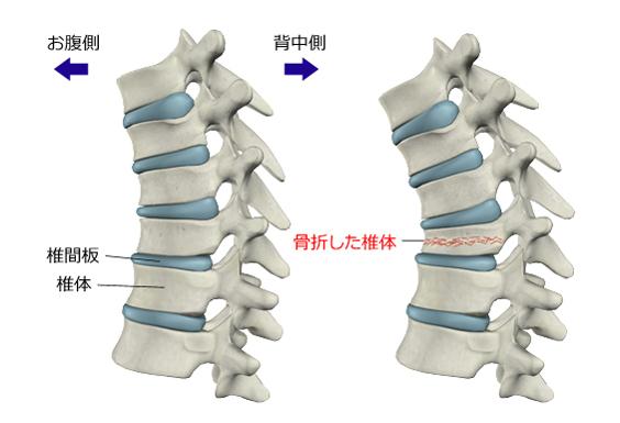 図2 腰椎の圧迫骨折